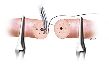 vasectomia um
